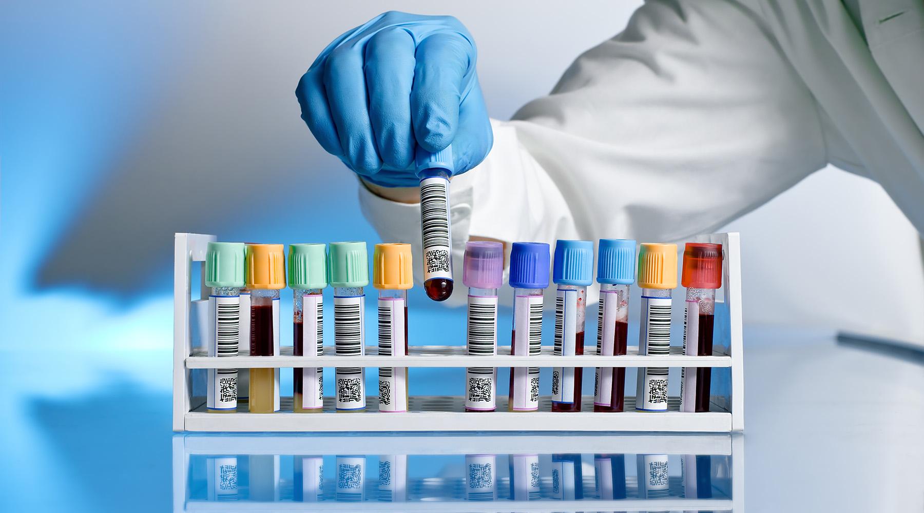 análises clínicas em pelotas